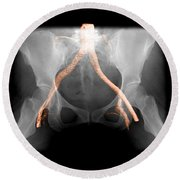 X-ray Of Pelvis With Arteries Round Beach Towel