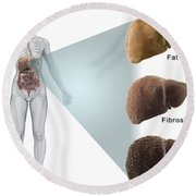 Stages Of Liver Disease Round Beach Towel
