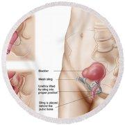 Anatomy Of Bladder Suspension Procedure Round Beach Towel