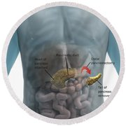 Distal Pancreatectomy Round Beach Towel