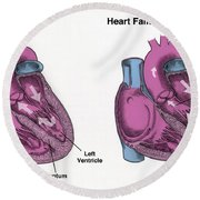Healthy Heart Vs. Heart Failure Round Beach Towel