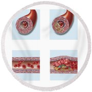 Normal Artery Compared To Plaque Round Beach Towel