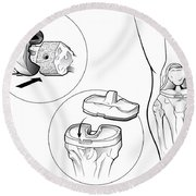 Total Knee Replacement Prosthetic Round Beach Towel