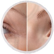 Womans Eye With And Without Wrinkles Round Beach Towel