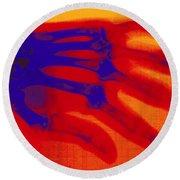X-ray Of Hand With Rheumatoid Arthritis Round Beach Towel