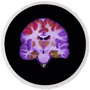 Brain Areas Affected By Alzheimers Round Beach Towel