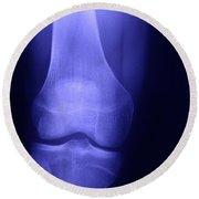 Knee X-ray Round Beach Towel