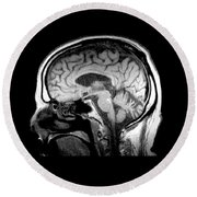 Mri Of Alcoholism Related Vermian Round Beach Towel