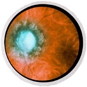 Retina Infected By Syphilis Round Beach Towel