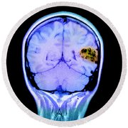 Mri Of Brain Avm Round Beach Towel