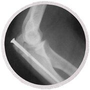 Broken Arm With Metal Pin, X-ray Round Beach Towel