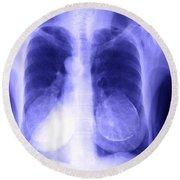 Chest X-ray Of Female Round Beach Towel