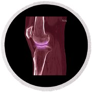 Knee Showing Osteoporosis Round Beach Towel