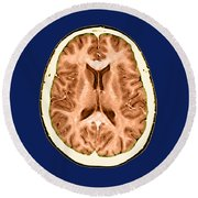 Normal Cross Sectional Mri Of The Brain Round Beach Towel