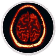 Mri Of Normal Brain Round Beach Towel