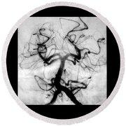 Angiogram Of Embolus In Cerebral Artery Round Beach Towel