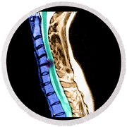 Herniated Disc In Cervical Spine Round Beach Towel