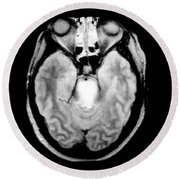 Mri Of Brainstem Glioma Round Beach Towel