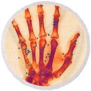 X-ray Of Gunshot In The Hand Round Beach Towel