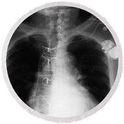 X-ray Of Implanted Defibulator Round Beach Towel