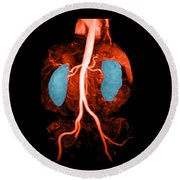 Abdominal Aorta, Kidneys And Iliac Round Beach Towel