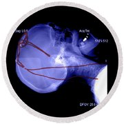 Lateral X-ray Of Deep Electrodes Round Beach Towel