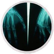 Arthritic & Normal Hand Round Beach Towel