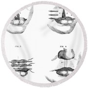 Cleft Lip Surgery, 1791 Round Beach Towel