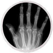Osteoporosis And Degenerative Arthritis Round Beach Towel