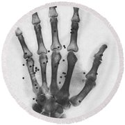 X-ray Of A Hand With Buckshot Round Beach Towel