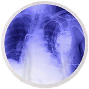 X-ray Of A Pacemaker Round Beach Towel