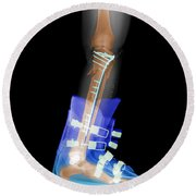 X-ray Of Broken Bones In Ski Boot Round Beach Towel
