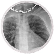 X-ray Of Enlarged Heart Round Beach Towel
