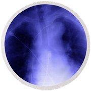 X-ray Of Implanted Defibulator Round Beach Towel