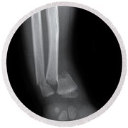X-ray Of Wrist Fracture Round Beach Towel