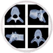 Human Vertebra T5, X-ray Round Beach Towel