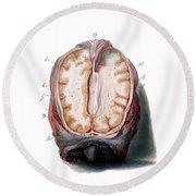 Brain, Anatomical Illustration, 1802 Round Beach Towel