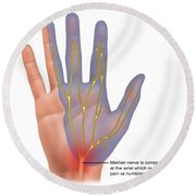 Carpal Tunnel Syndrome, Illustration Round Beach Towel