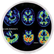 Normal And Alzheimer Brains, Pet Scans Round Beach Towel