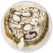 Placenta With Tumors, Illustration, 1836 Round Beach Towel