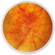 Retinal Papilledema Round Beach Towel by Science Source