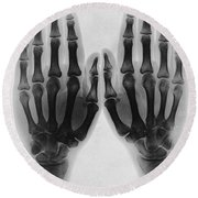 X-ray Of Two Normal Hands, 1896 Round Beach Towel