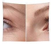 Womans Eye With And Without Wrinkles Tapestry
