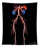 Ct Angiogram Of Abdomen And Legs Tapestry