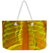 A Normal Chest X-ray Weekender Tote Bag