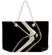 X-ray Image Of Knee Weekender Tote Bag