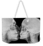 X-ray Kissing Weekender Tote Bag