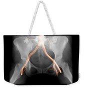 X-ray Of Pelvis With Arteries Weekender Tote Bag