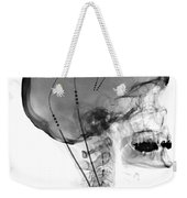 Deep Brain Stimulating Electrodes, X-ray Weekender Tote Bag