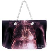 Heart Within The Chest Weekender Tote Bag